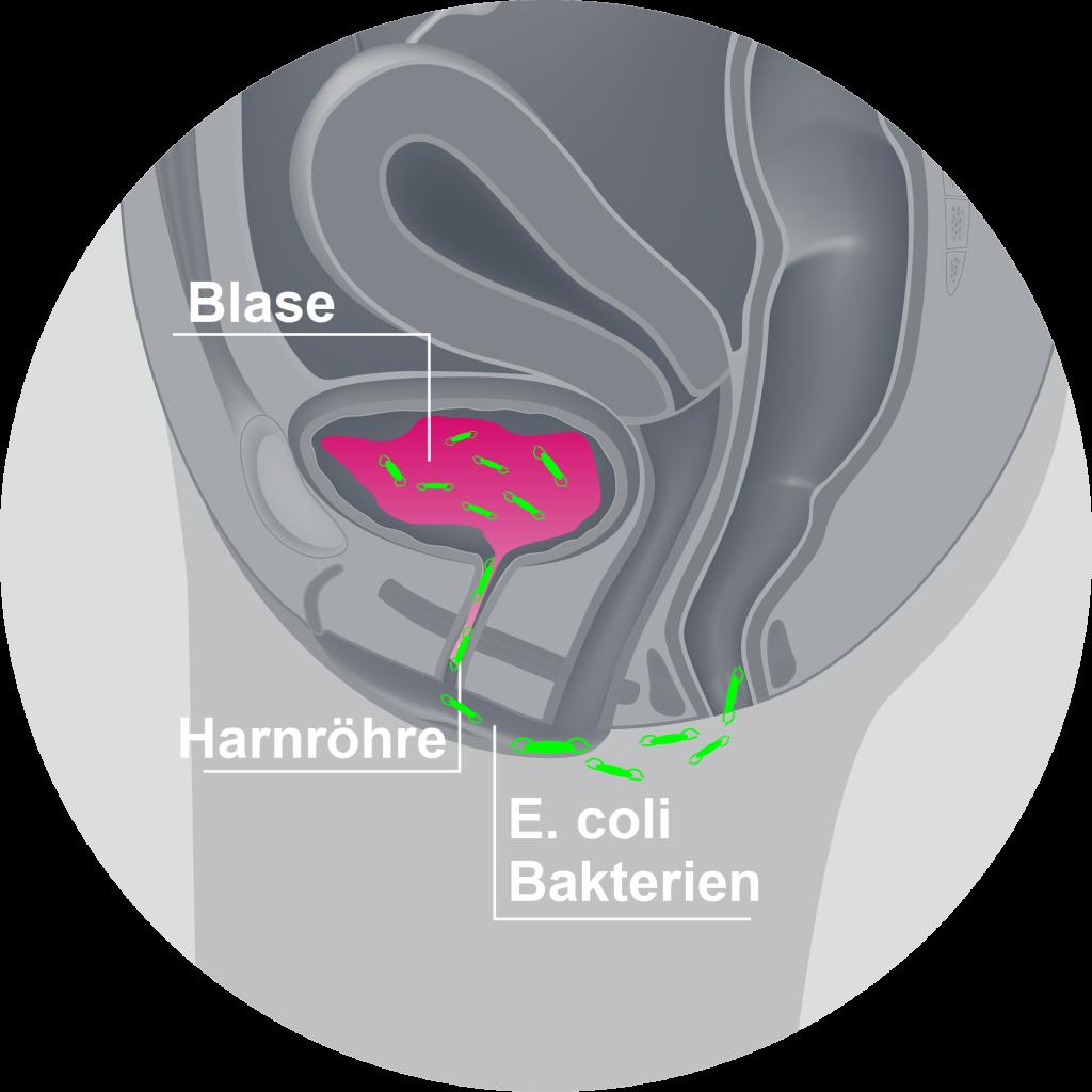 Blasenentzündung bei Mann und Frau